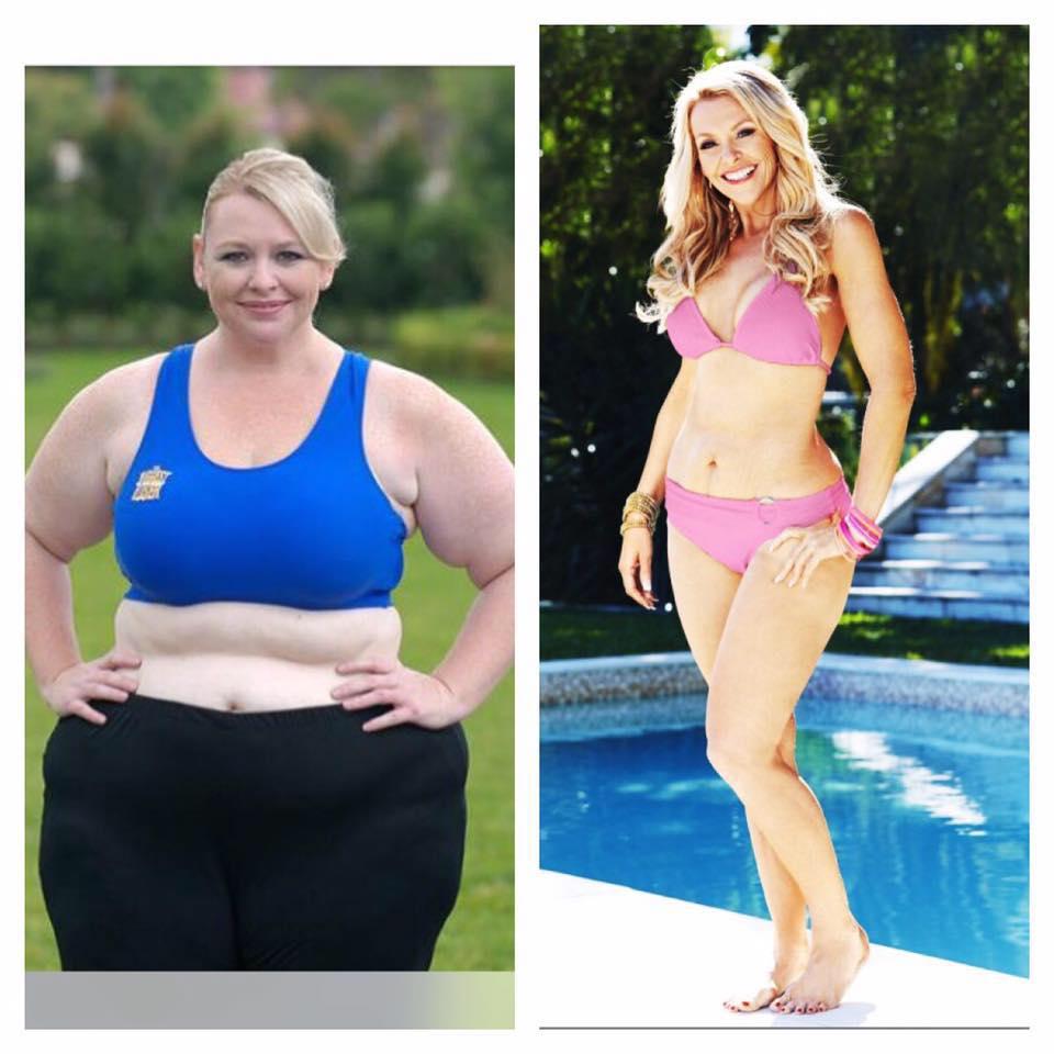 TIP.ba  Imala je 122 kg: Očarat će vas kako danas izgleda u bikiniju