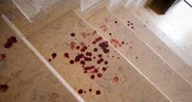 krv haustor